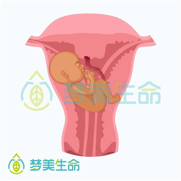 双角子宫妊娠